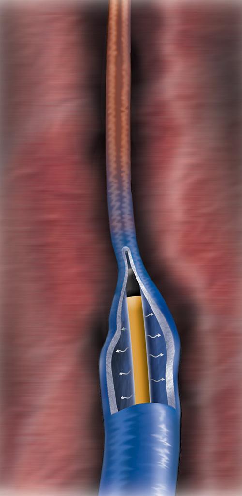 下肢静脈瘤の治療