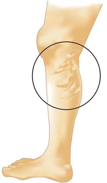 下肢静脈瘤のタイプ
